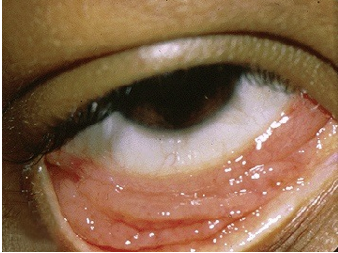 infection in the eyes